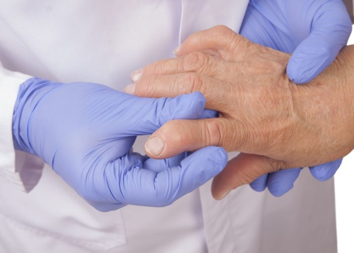 19141885 - senior woman with rheumatoid arthritis visit a doctor isolated on white